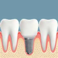 Dental Implants Du Bois PA