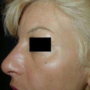 Botox Cosmetics Du Bois PA
